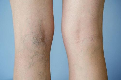 Bệnh suy tĩnh mạch diễn ra ở vùng chân