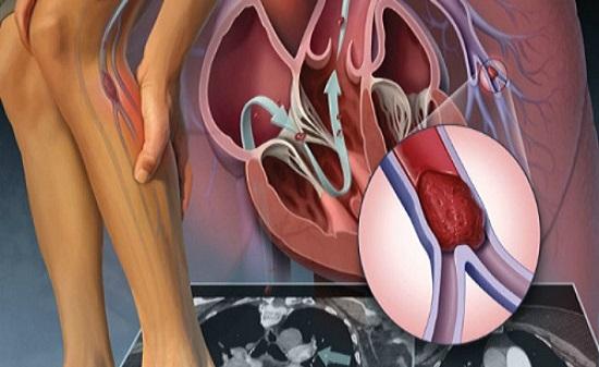 Bệnh suy tĩnh mạch tiến triển nặng có thể gây tử vong