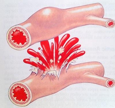 Khi bị tắc nghẽn trong các mạch máu đến gan, các mạch máu có thể bị rò rỉ hoặc thâm chí bị vỡ