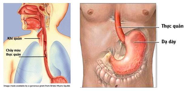 Tĩnh mạch thực quản mỏng rất dễ vỡ và gây chảy máu.