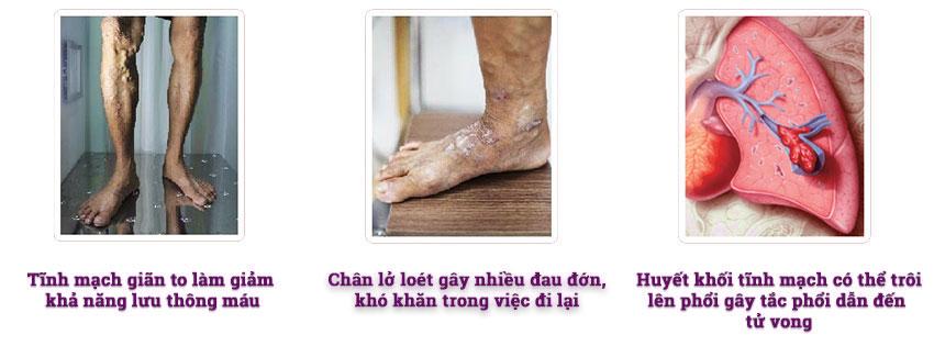 Biến chứng của bệnh giãn tĩnh mạch chân