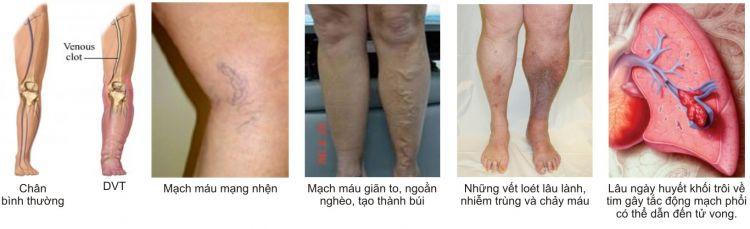 Biến chứng nguy hiểm của bệnh giãn tĩnh mạch chân