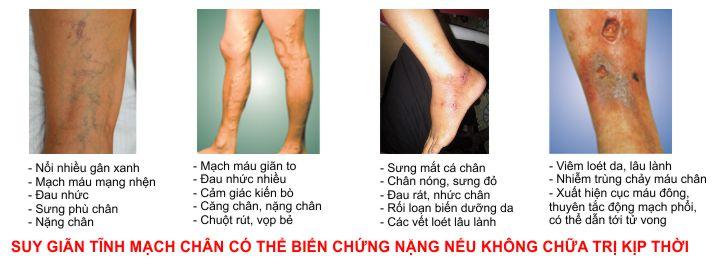 Các biến chứng nguy hiểm của suy giãn tĩnh mạch chân