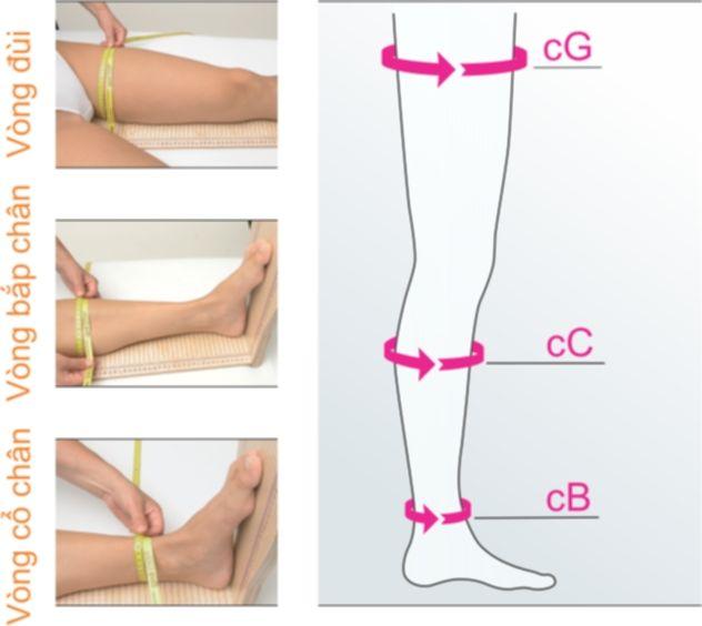 Cách sử dụng vớ y khoa Mediven Activehỗ trợ điều trị giãn tĩnh mạch chân