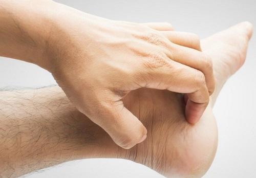 Ngứa chân, mỏi chân, đau chân, nặng chân là dấu hiệu giai đoạn đầu