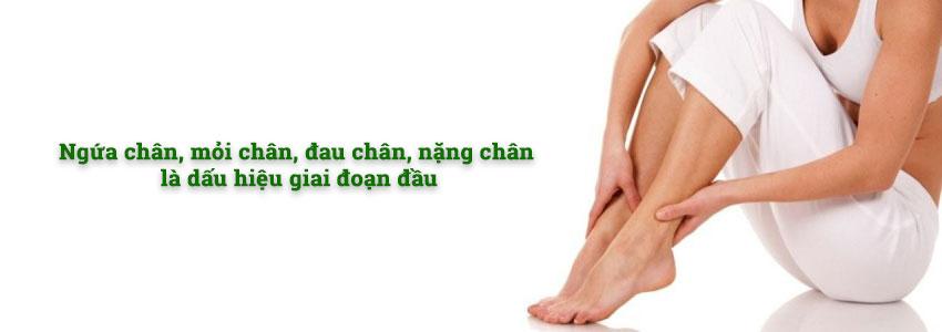 Ngứa chân, mỏi chân, đau chân, nặng chân là dấu hiệu giai đoạn đầu của bệnh giãn tĩnh mạch chân