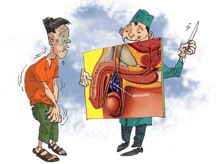 Giãn tĩnh mạch thừng tinh được chia làm 3 cấp độ