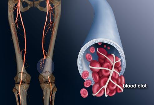 Huyết khối tĩnh mạch sâu là sự hình thành của các cục máu đông
