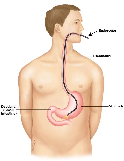 Nội soi bệnh giãn tĩnh mạch thực quản