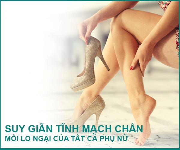Giãn tĩnh mạch chân là mối lo ngại của nhiều phụ nữ