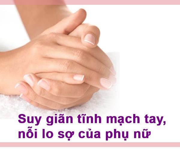 Suy giãn tĩnh mạch tay là tình trạng các tĩnh mạch bị suy yếu