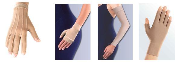 Giãn tĩnh mạch tay có thể điều trị bằng phương pháp nội khoa