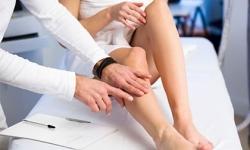 4 việc cần làm ngay lập tức khi phát hiện triệu chứng bệnh suy giãn tĩnh mạch