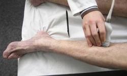 Huyết khối tĩnh mạch sâu là gì? nguyên nhân hình thành huyết khối tĩnh mạch sâu