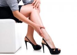 Nữ giới và những điều cần biết về suy giãn tĩnh mạch chân