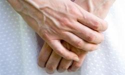 Triệu chứng của bệnh suy giãn tĩnh mạch tay và giải pháp điều trị giãn tĩnh mạch tay