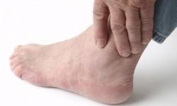 Phân biệt đau chân do giãn tĩnh mạch và đau cách hồi gây ra